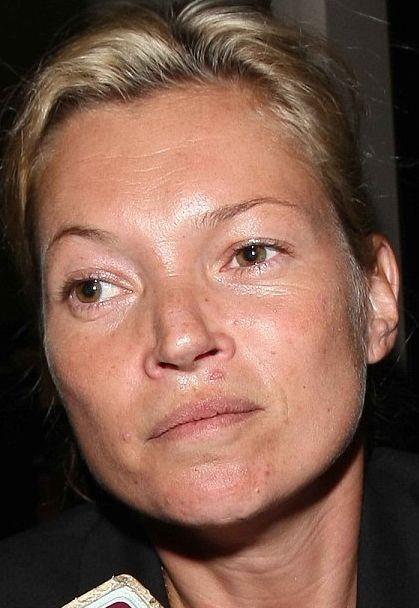 Kate Moss, geçtiğimiz gün Los Angelas Havalimanı'ndaki görüntüsüyle şok etti.  34 yaşındaki eski model, alnı ve göz kenarlarındaki derin kırışıklıklar ve sivilceleriyle yaşından çok daha büyük görünüyordu.